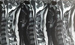 MRI showing C3-C4 PIVD with cervical myelopathy|Dr. Ajay Kothari|Shivaji Nagar,Pune