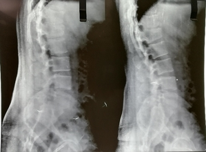 Preop X-ray