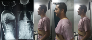 Ankylosing Spondylitis Treatment Post-Op