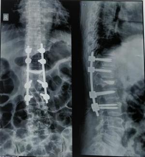 f Osteoporotic Vertebral Compression Fracture post-operative|Dr. Ajay Kothari|Shivaji Nagar,Pune