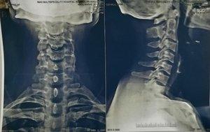 Cervical Spine Surgery pre-op XRAY|Dr. Ajay Kothari|Shivaji Nagar,Pune