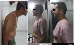 Spinal Deformity Correction per and post operative|Dr. Ajay Kothari|Shivaji Nagar,Pune