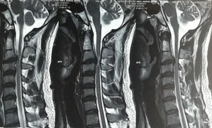 MRI showing C3-C4 PIVD with cervical myelopathy