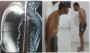 Ankylosing Spondylitis Treatment Pre-Op