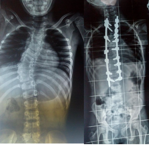 Spinal Deformity Correction By Dr. Ajay Kothari